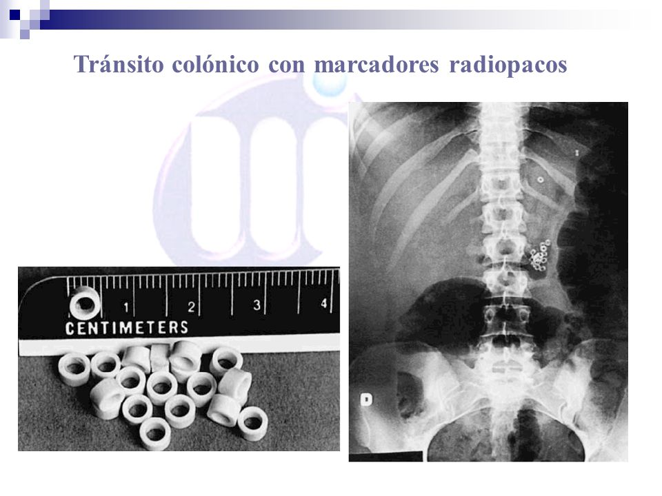 Tránsito colónico con marcadores radiopacos