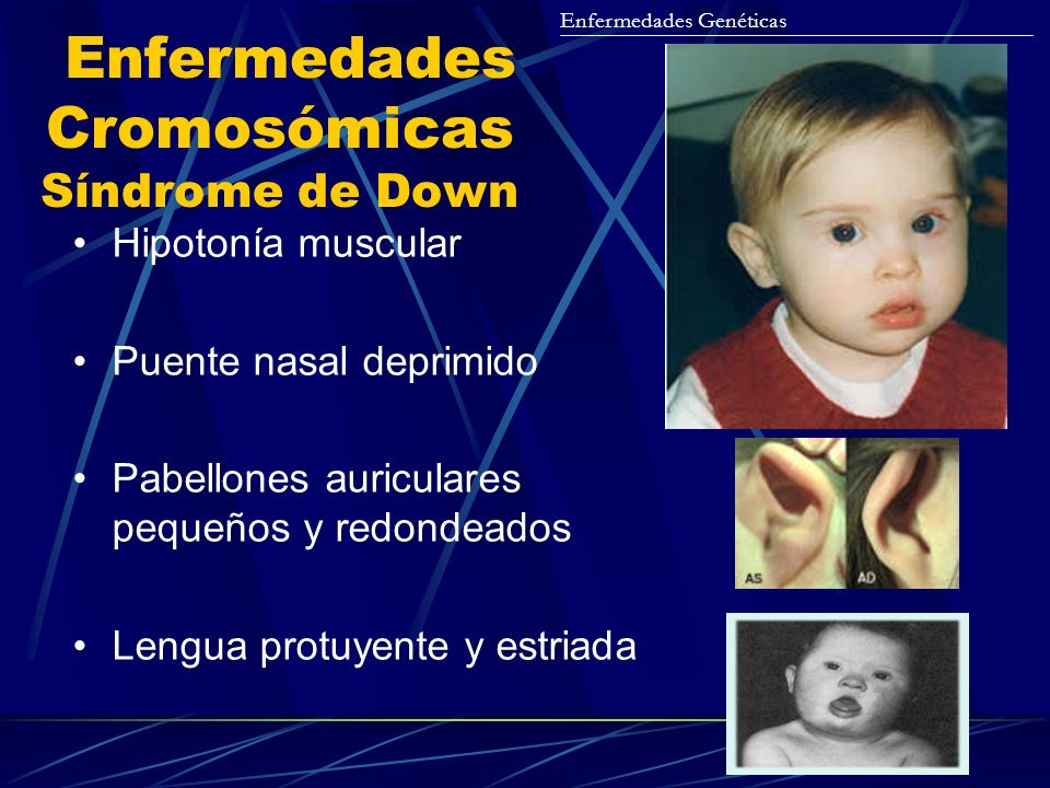 Enfermedades Cromosómicas Síndrome de Down