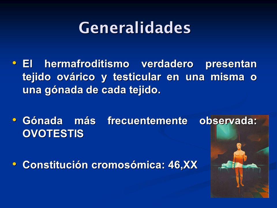 Generalidades El hermafroditismo verdadero presentan tejido ovárico y testicular en una misma o una gónada de cada tejido.