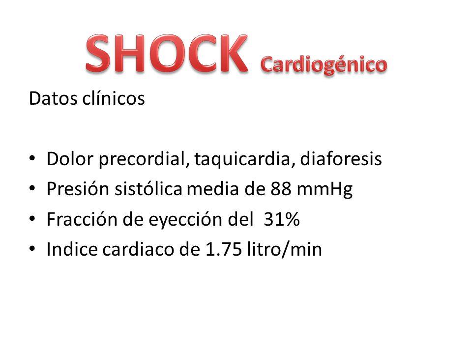SHOCK Cardiogénico Datos clínicos