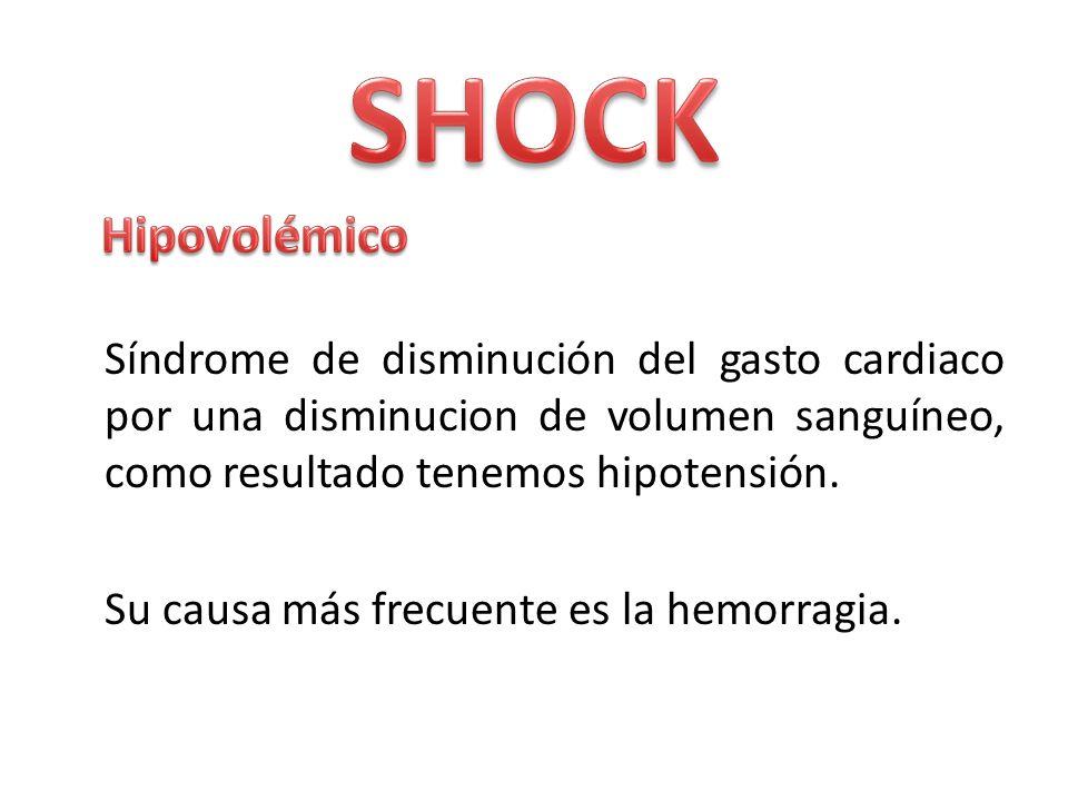 SHOCK Síndrome de disminución del gasto cardiaco por una disminucion de volumen sanguíneo, como resultado tenemos hipotensión.