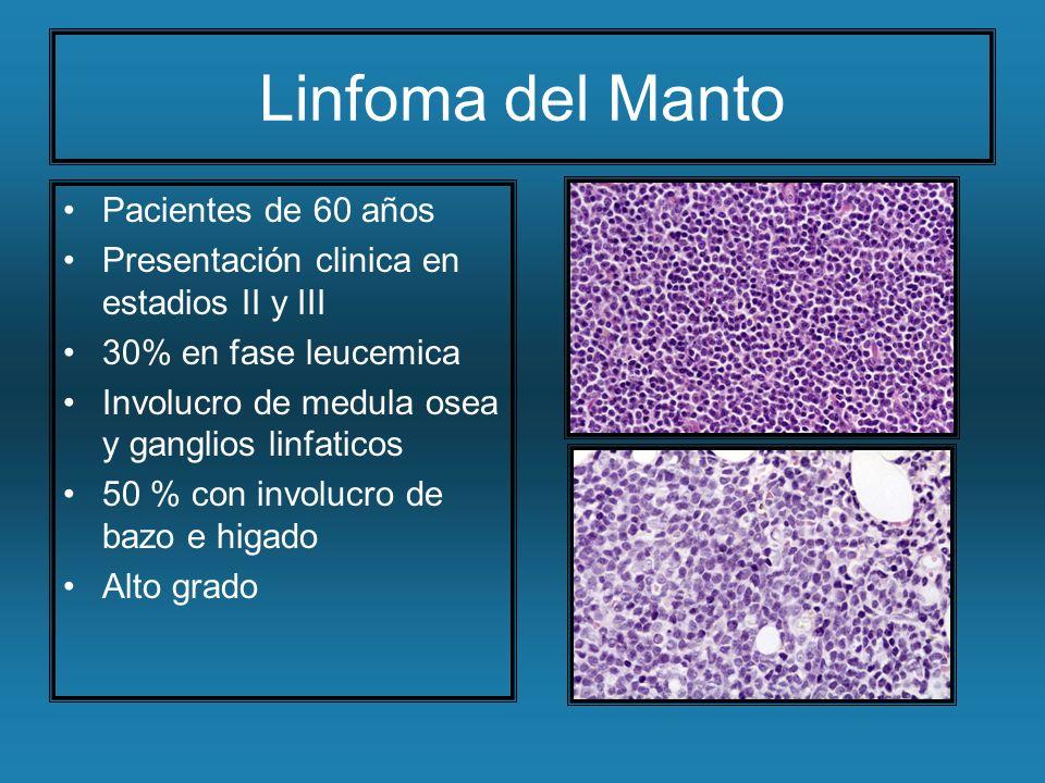 Linfoma del Manto Pacientes de 60 años
