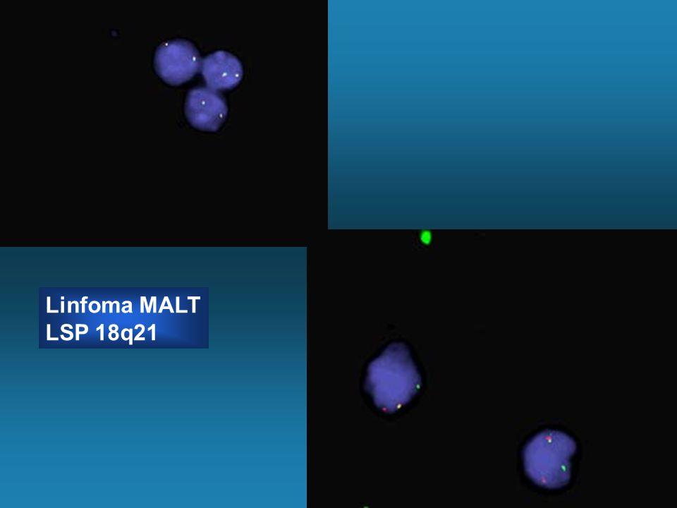 Linfoma MALT LSP 18q21