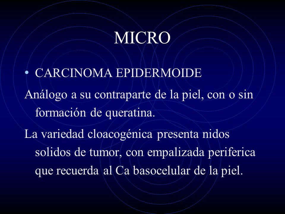 MICRO CARCINOMA EPIDERMOIDE
