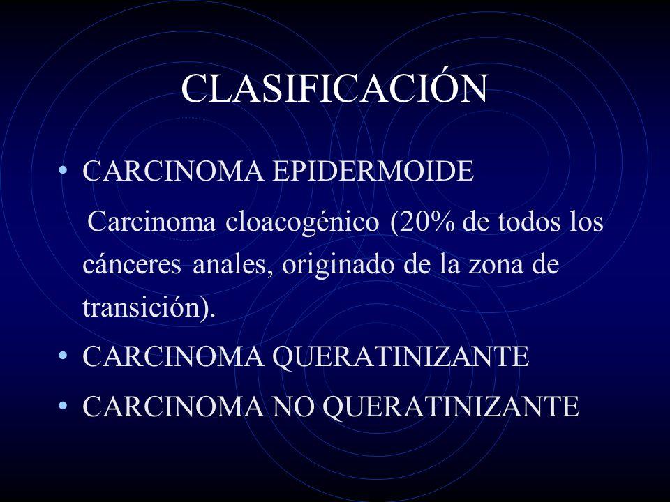 CLASIFICACIÓN CARCINOMA EPIDERMOIDE