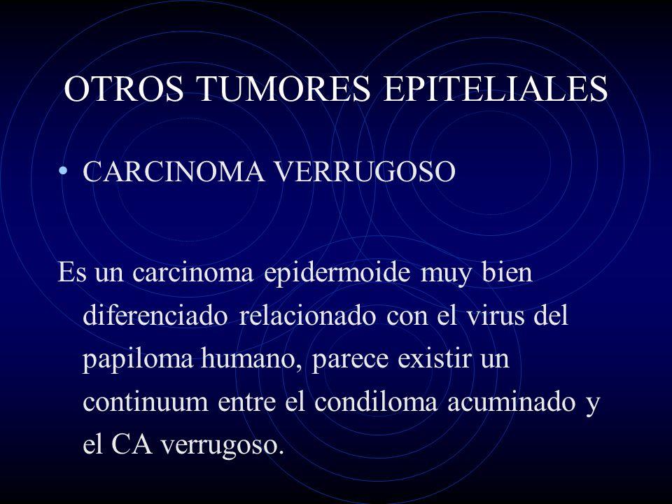 OTROS TUMORES EPITELIALES