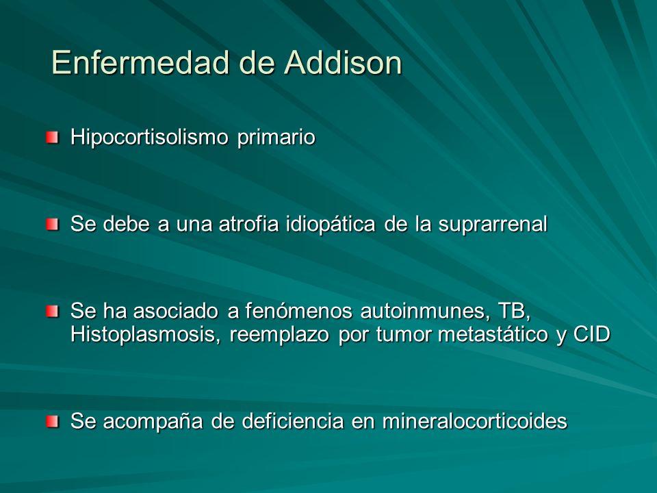 Enfermedad de Addison Hipocortisolismo primario