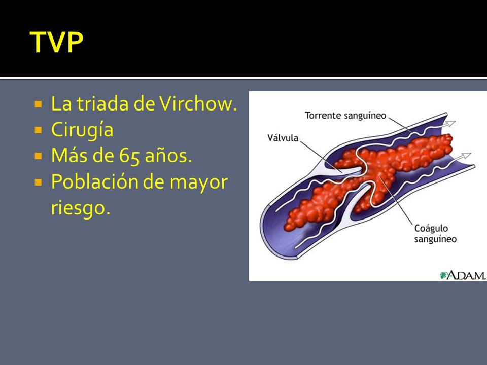 TVP La triada de Virchow. Cirugía Más de 65 años.