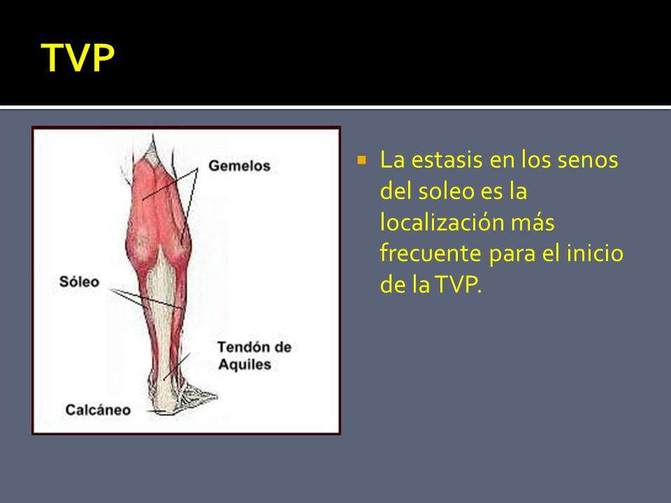 TVP La estasis en los senos del soleo es la localización más frecuente para el inicio de la TVP.