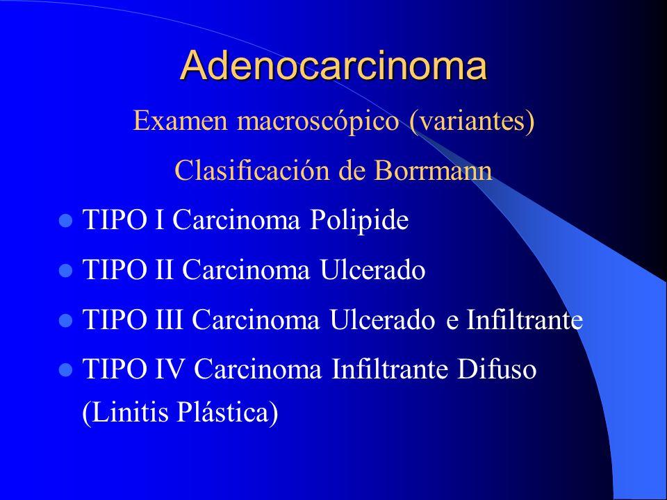 Adenocarcinoma Examen macroscópico (variantes)