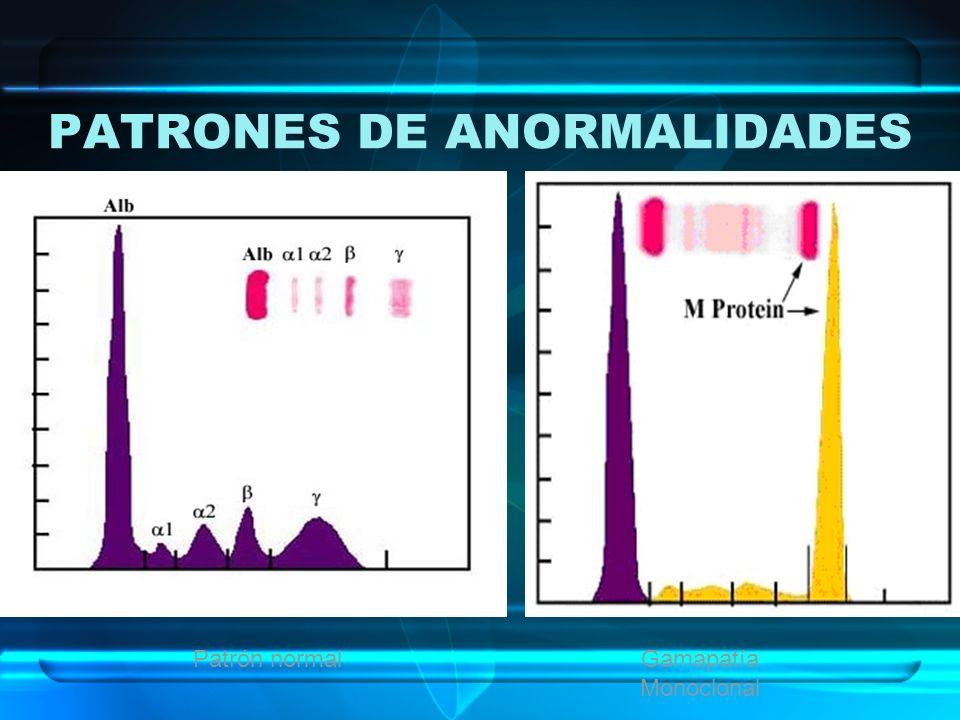 PATRONES DE ANORMALIDADES