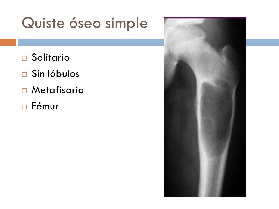 Quiste óseo simple Solitario Sin lóbulos Metafisario Fémur