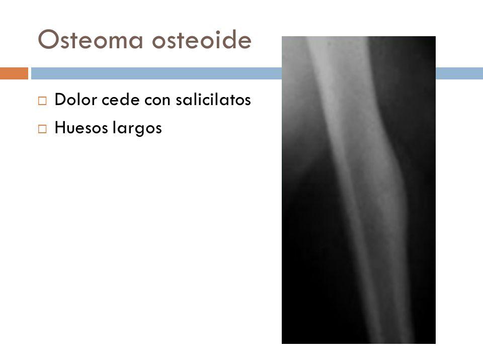 Osteoma osteoide Dolor cede con salicilatos Huesos largos
