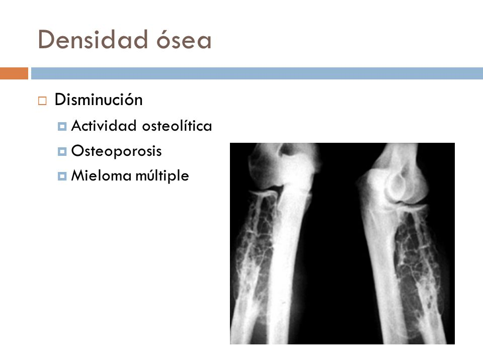Densidad ósea Disminución Actividad osteolítica Osteoporosis