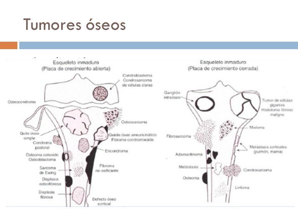 Tumores óseos Localización Anatómica Estructural