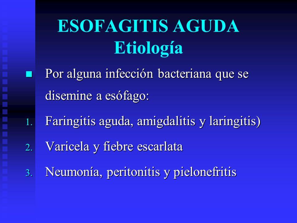 ESOFAGITIS AGUDA Etiología