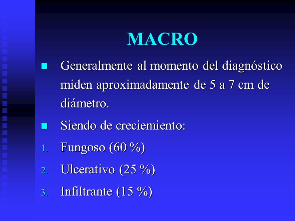 MACROGeneralmente al momento del diagnóstico miden aproximadamente de 5 a 7 cm de diámetro. Siendo de creciemiento: