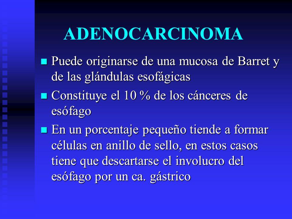 ADENOCARCINOMA Puede originarse de una mucosa de Barret y de las glándulas esofágicas. Constituye el 10 % de los cánceres de esófago.