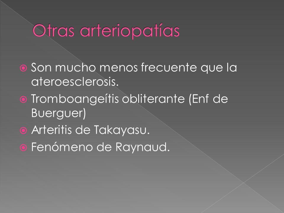 Otras arteriopatías Son mucho menos frecuente que la ateroesclerosis.