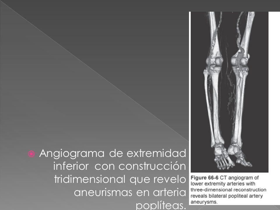 Angiograma de extremidad inferior con construcción tridimensional que revelo aneurismas en arteria poplíteas.