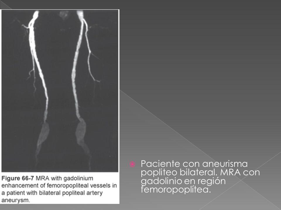Paciente con aneurisma popliteo bilateral