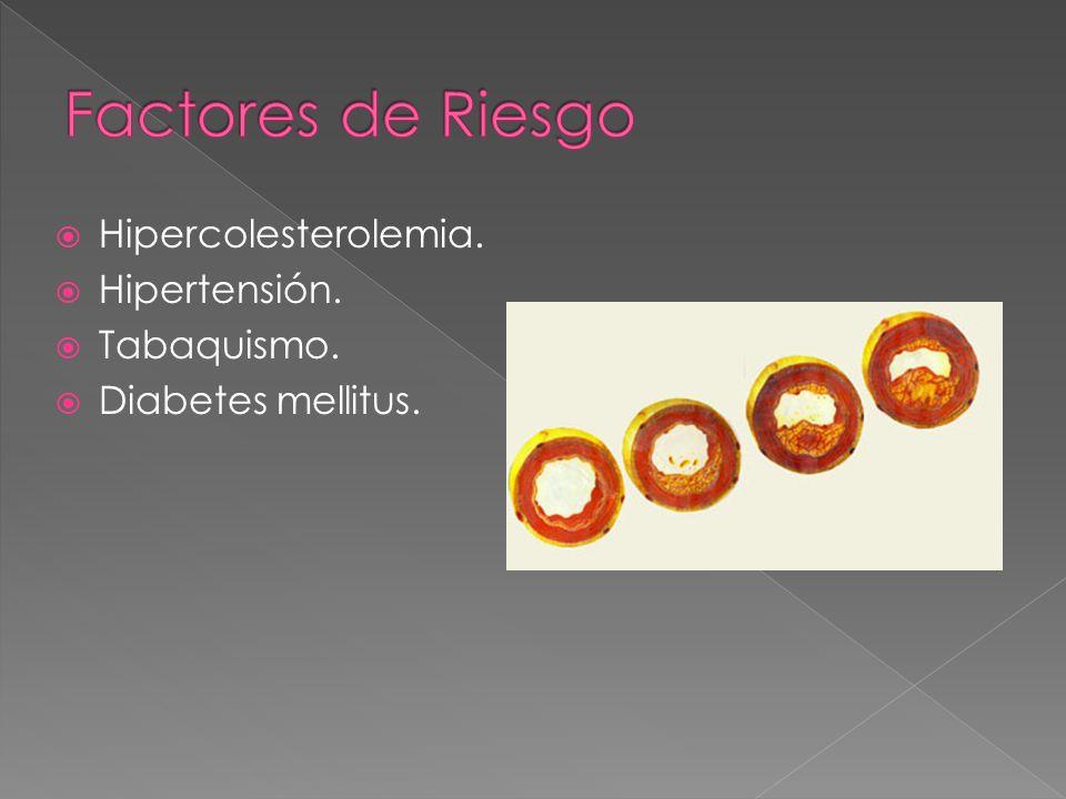 Factores de Riesgo Hipercolesterolemia. Hipertensión. Tabaquismo.