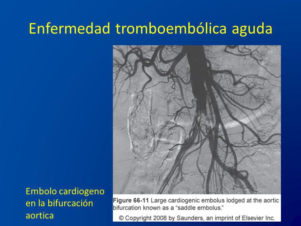 Enfermedad tromboembólica aguda