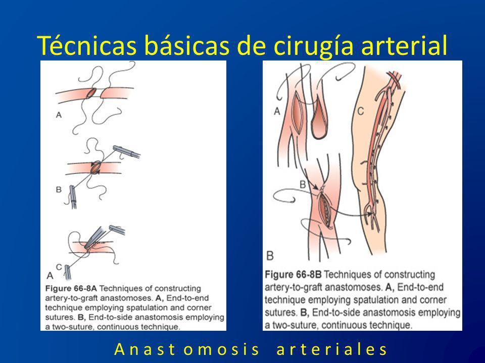 Técnicas básicas de cirugía arterial