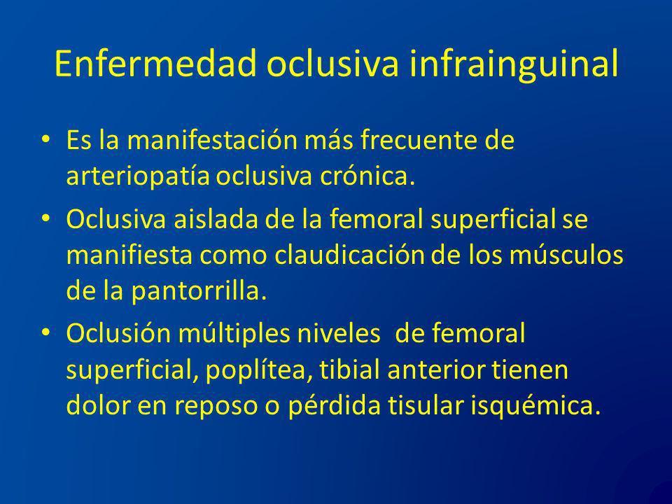 Enfermedad oclusiva infrainguinal