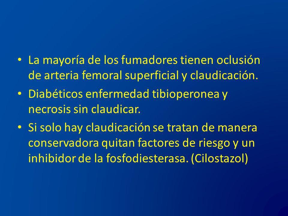 La mayoría de los fumadores tienen oclusión de arteria femoral superficial y claudicación.