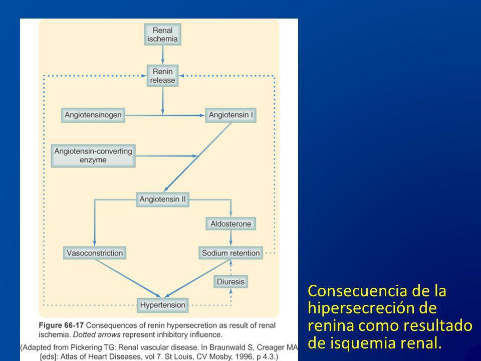 Consecuencia de la hipersecreción de renina como resultado de isquemia renal.
