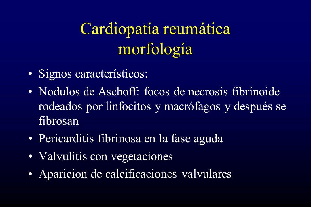 Cardiopatía reumática morfología