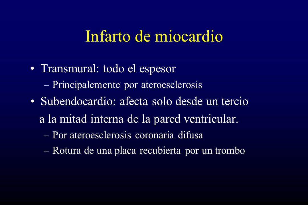 Infarto de miocardio Transmural: todo el espesor