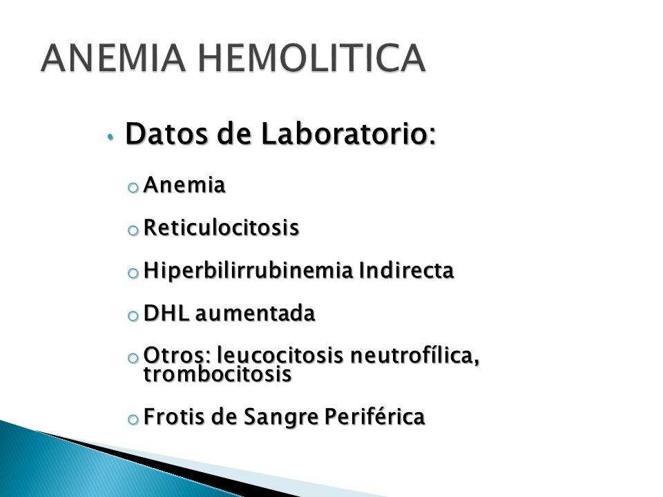 ANEMIA HEMOLITICA Datos de Laboratorio: Anemia Reticulocitosis