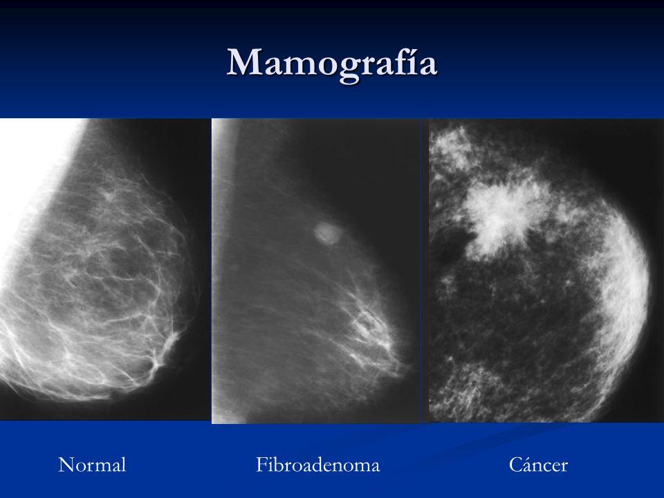 Mamografía Normal Fibroadenoma Cáncer