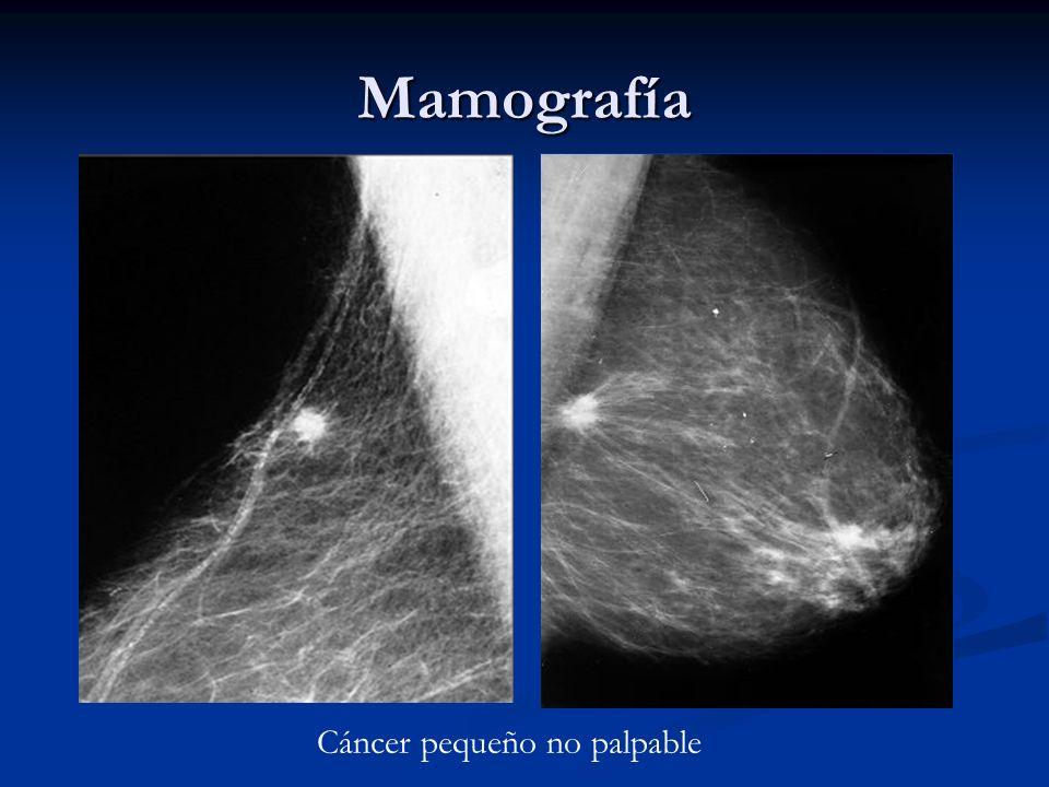 Mamografía Cáncer pequeño no palpable