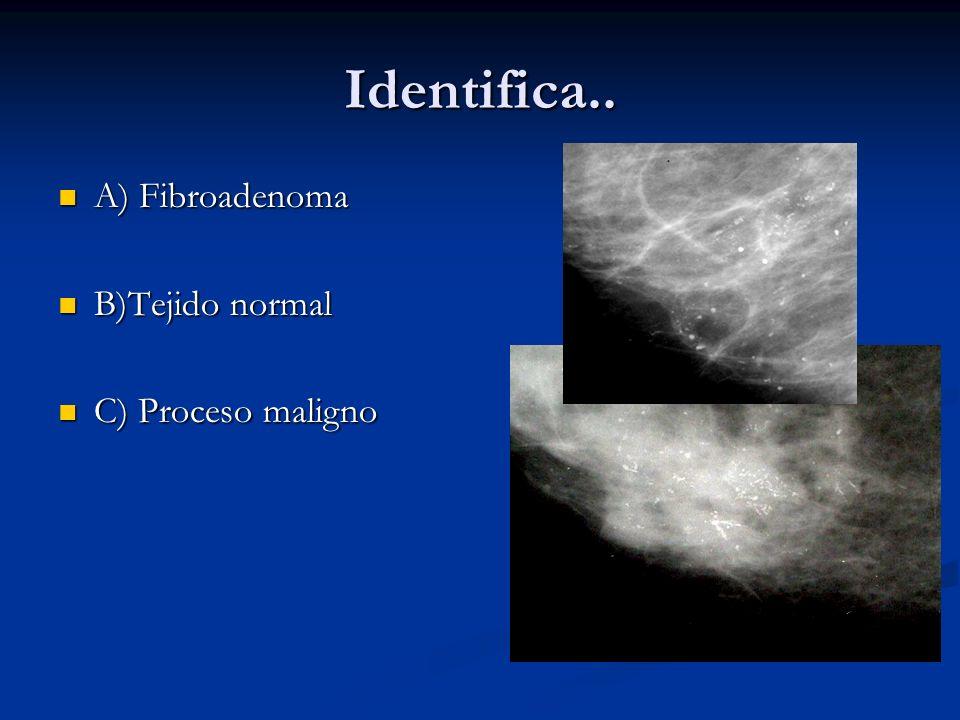 Identifica.. A) Fibroadenoma B)Tejido normal C) Proceso maligno