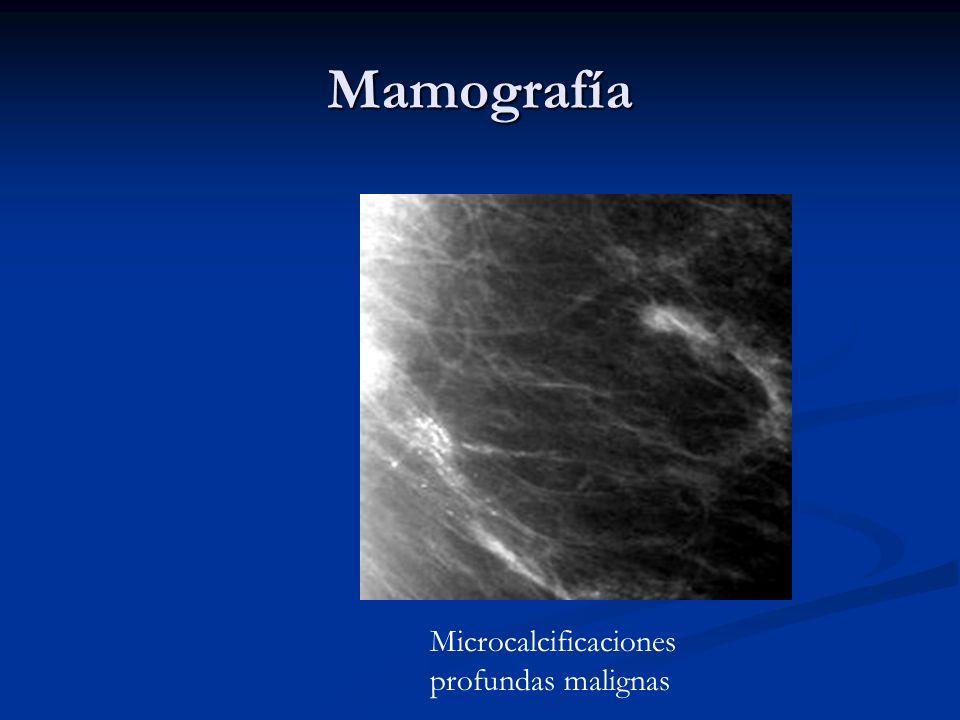 Mamografía Microcalcificaciones profundas malignas