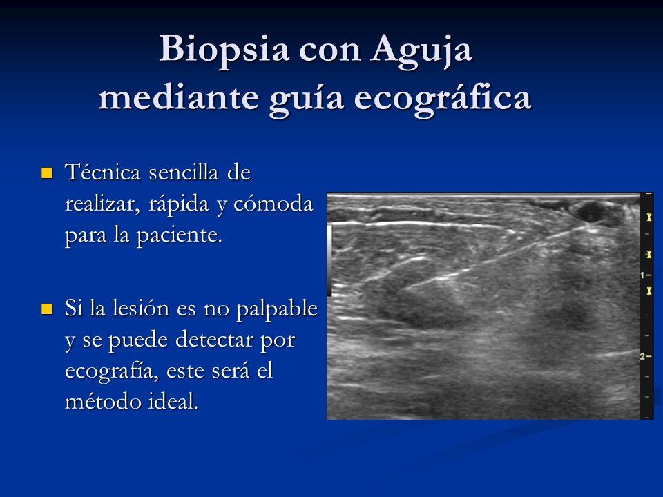 Biopsia con Aguja mediante guía ecográfica