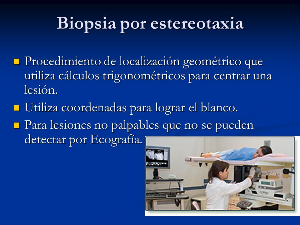 Biopsia por estereotaxia