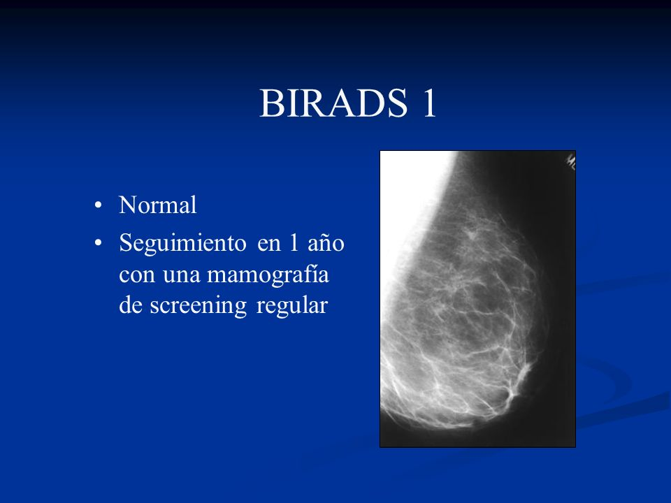 BIRADS 1 Normal Seguimiento en 1 año con una mamografía de screening regular