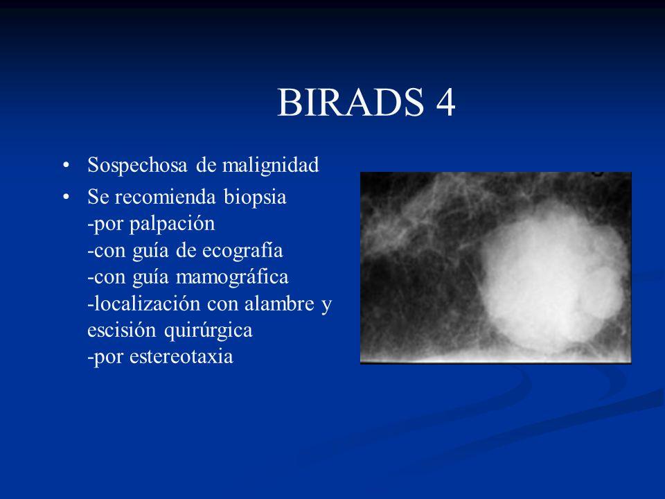 BIRADS 4 Sospechosa de malignidad