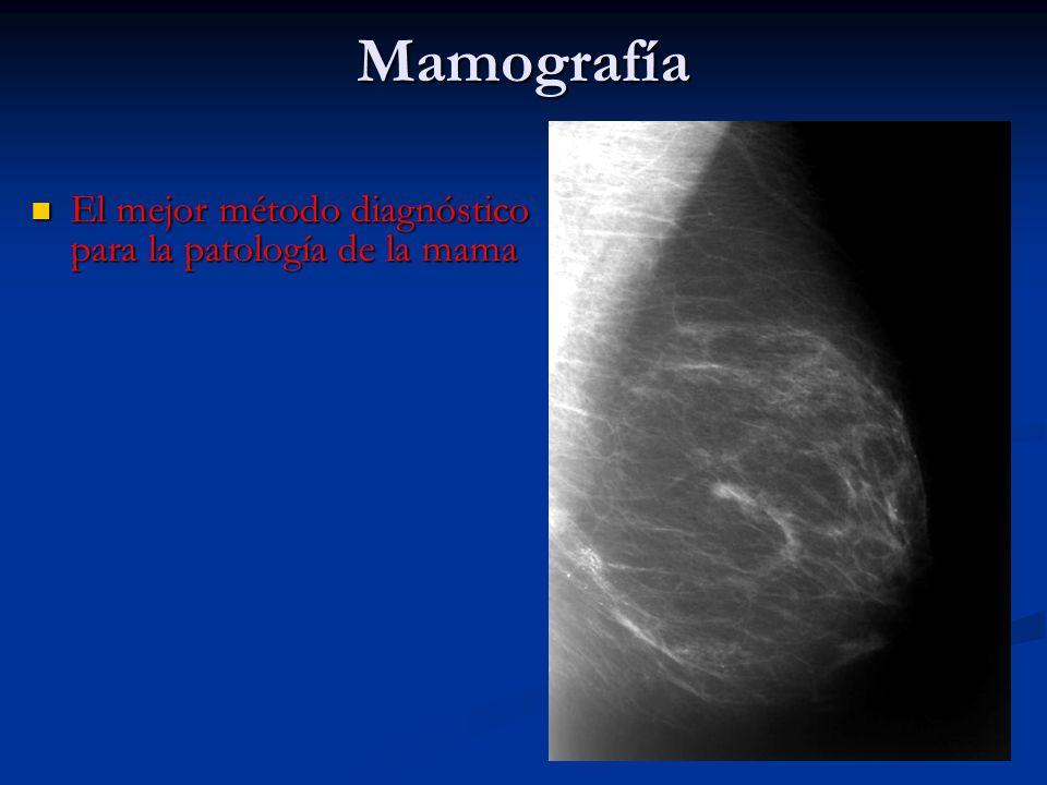 Mamografía El mejor método diagnóstico para la patología de la mama