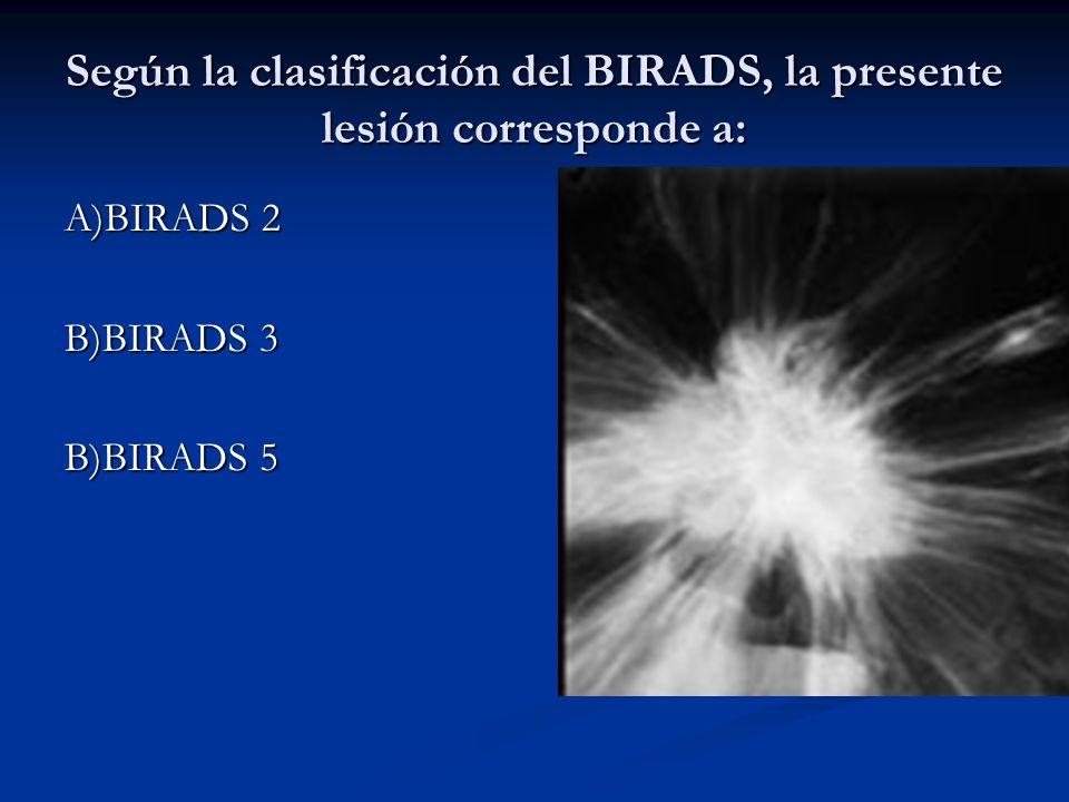 Según la clasificación del BIRADS, la presente lesión corresponde a:
