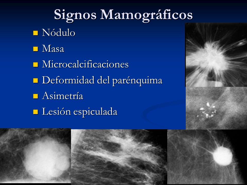 Signos Mamográficos Nódulo Masa Microcalcificaciones