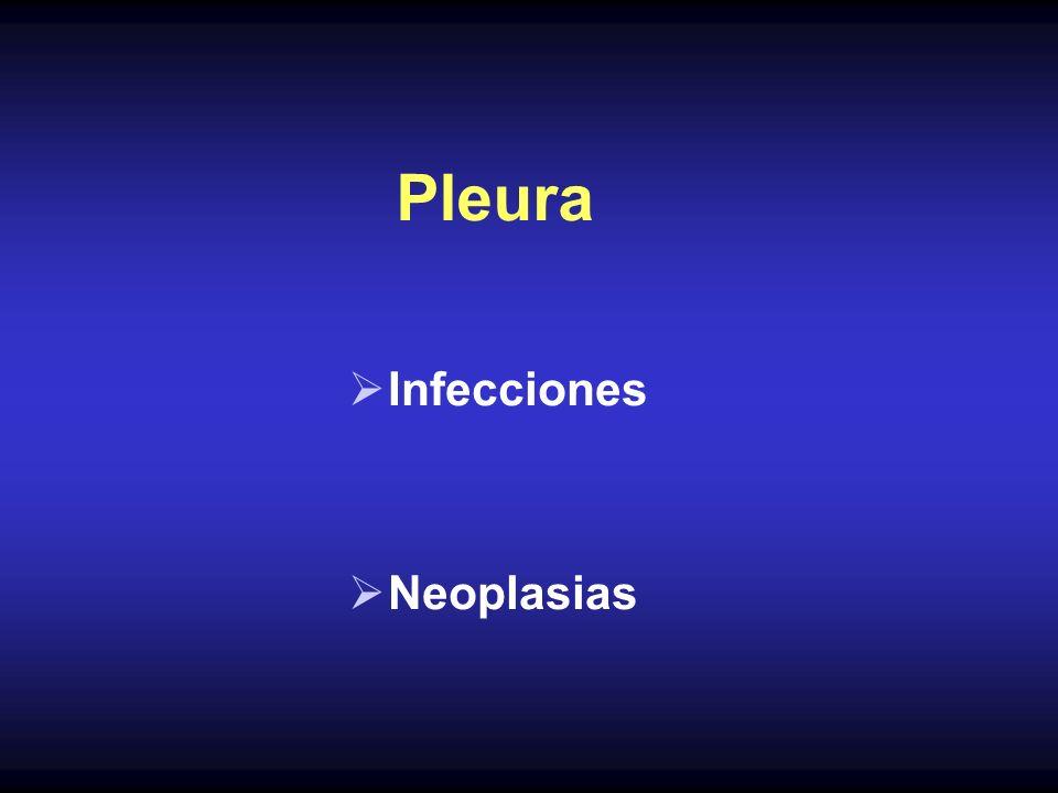 Pleura Infecciones Neoplasias