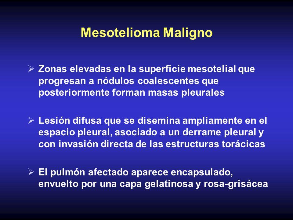 Mesotelioma MalignoZonas elevadas en la superficie mesotelial que progresan a nódulos coalescentes que posteriormente forman masas pleurales.