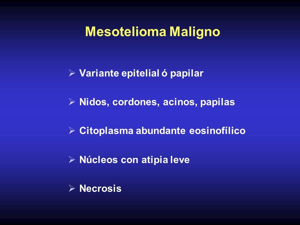 Mesotelioma Maligno Variante epitelial ó papilar