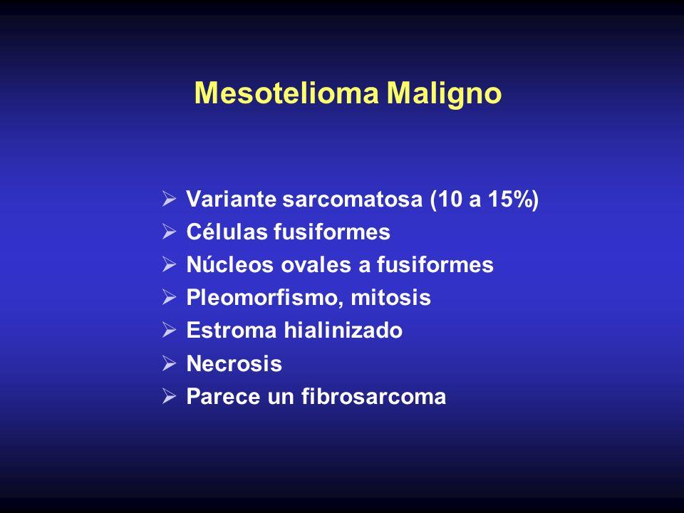 Mesotelioma Maligno Variante sarcomatosa (10 a 15%) Células fusiformes