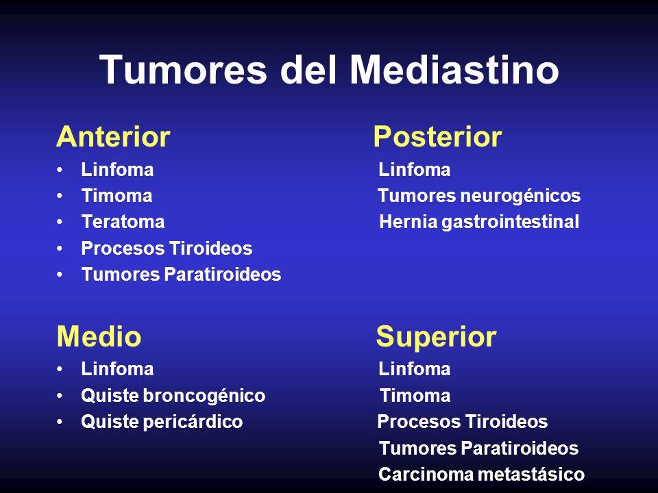 Tumores del Mediastino